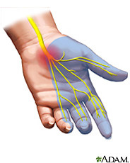Carpal Tunnel Syndrome 1 Carpal Tunnel Syndrome