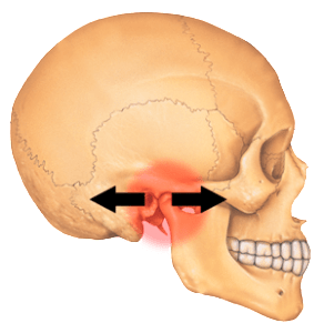 TMJ Jaw Pain Glasgow 292x300 Jaw (Temporomandibular Joint) Pain